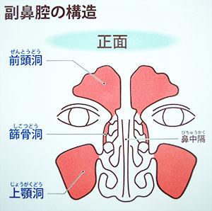 急性 副 鼻腔 炎